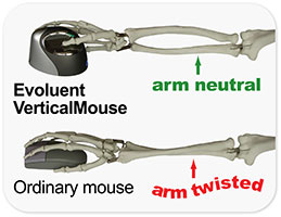 Evoluent Mouse Benefits